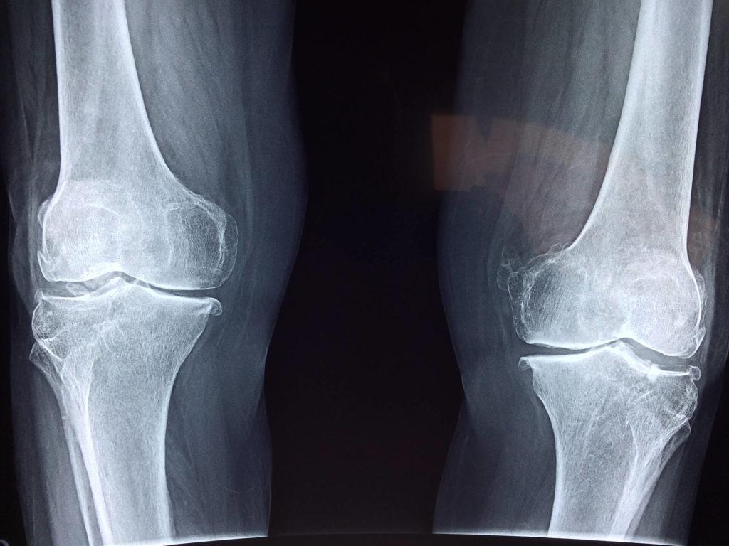 Orthopaedic rehabilitation